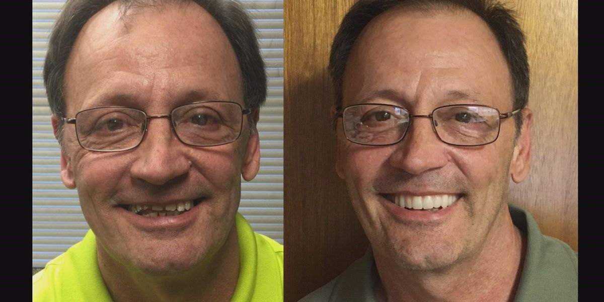 Have a new smile in one day with All-on-4 dental implants