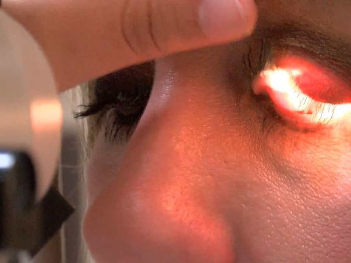 Cornea transplants saving patients lives