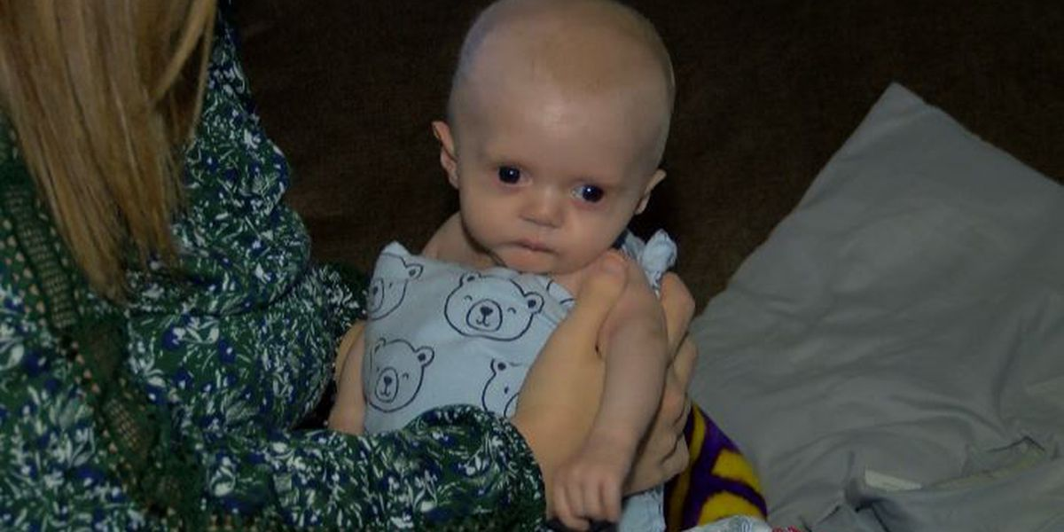Local baby diagnosed with Dent's Disease