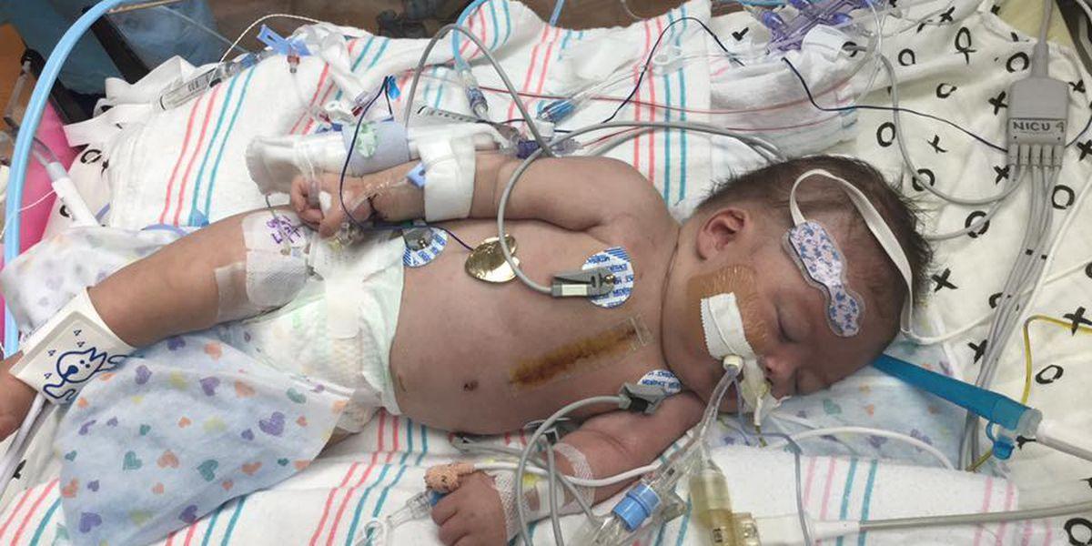 Baby born with 7 heart defects helps encourage new non-profit