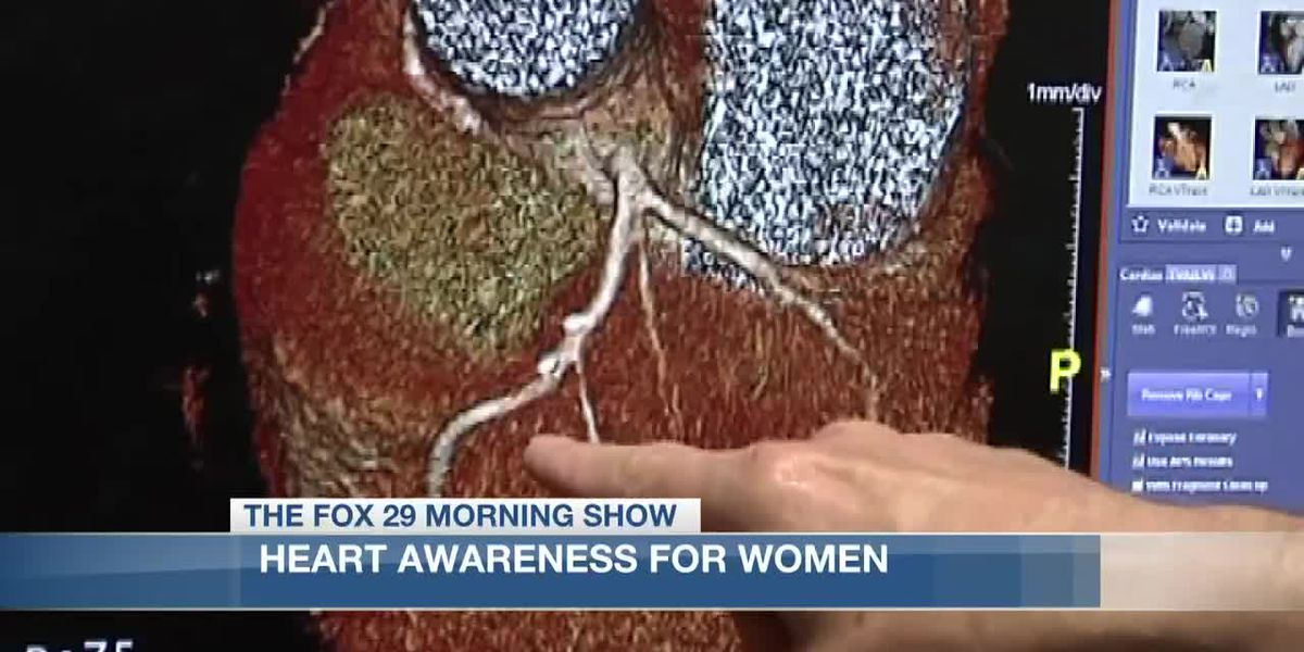 Recognizing heart disease signs in women