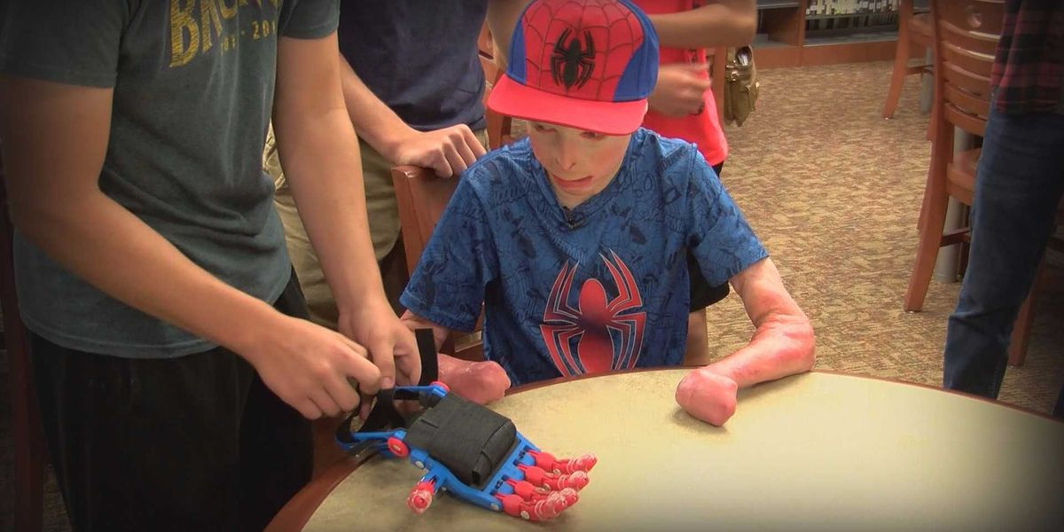 Lending a Hand: students build prosthetic hand for burn survivor