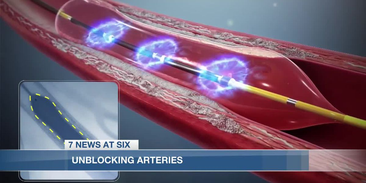 Lake Charles Memorial Hospital first in state to use new shockwave device on heart