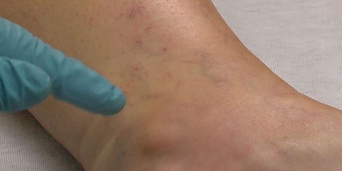 Spider veins: innocent or dangerous?