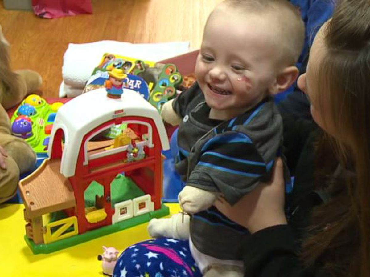 2-year-old recovering, and regaining spirit, after mystery illness forces amputations on all four limbs