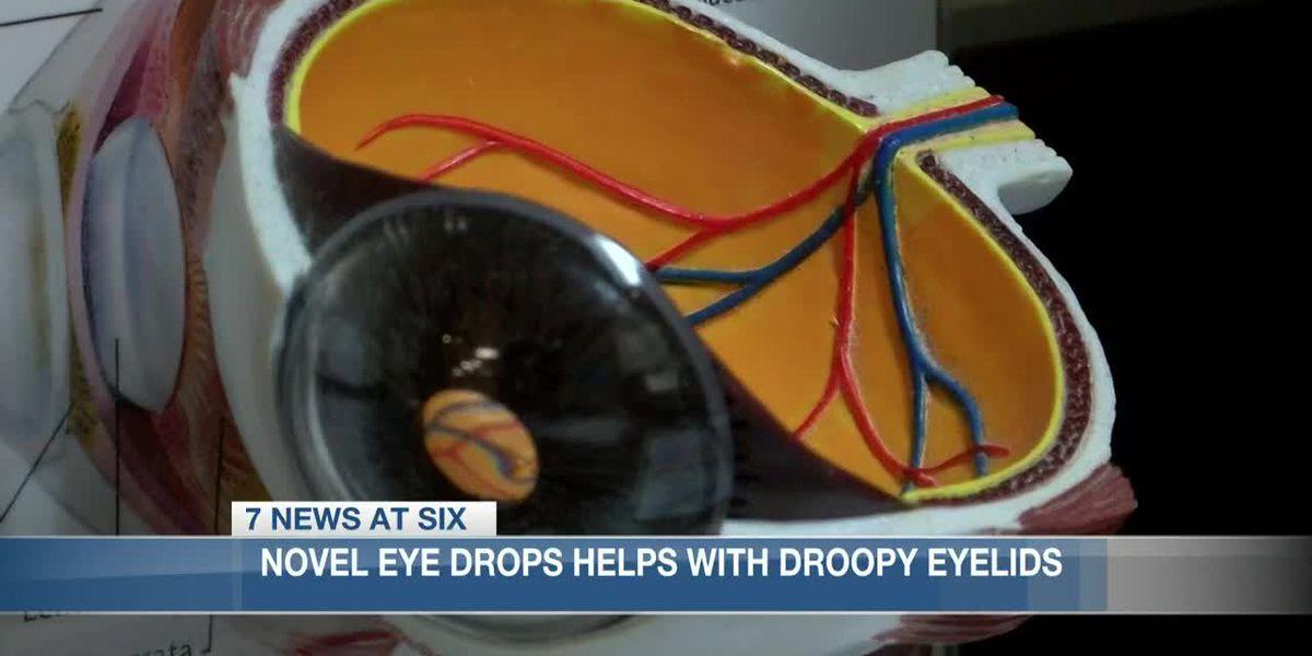New UPNEEQ product meant to fight droopy eyelids sold in Sulphur